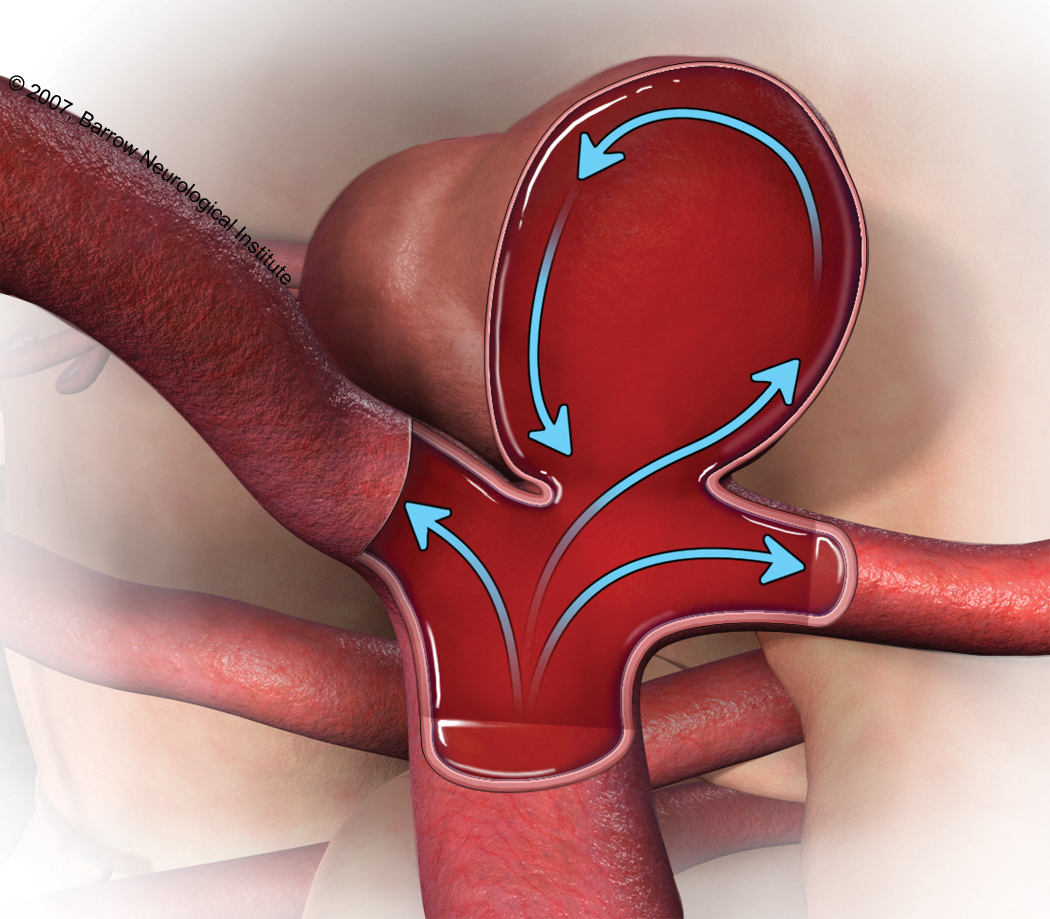 aneurysms A cerebral aneurysm (also known as an intracranial or intracerebral aneurysm) is a weak or thin spot on a blood vessel in the brain that balloons out and fills with blood.