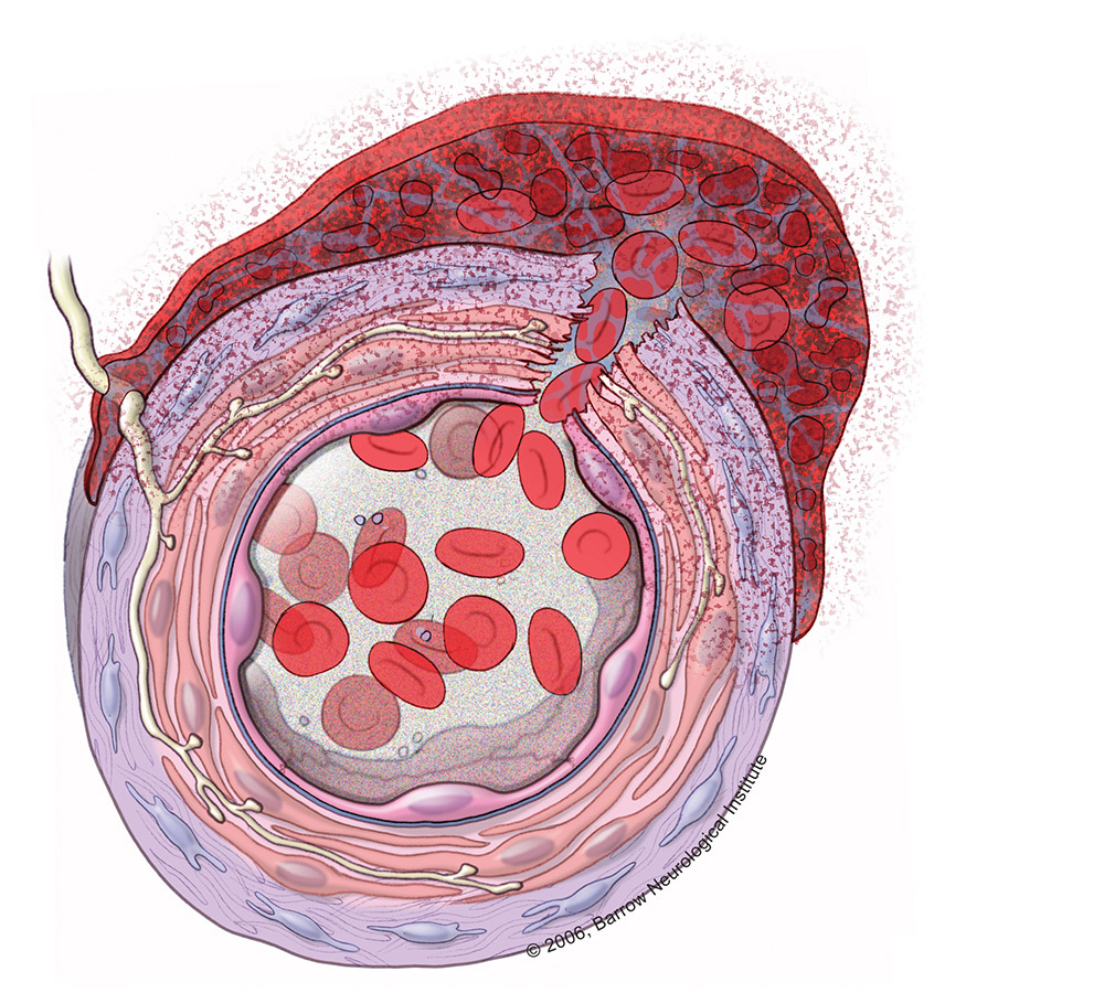 What Happens When an Aneurysm Bleeds?