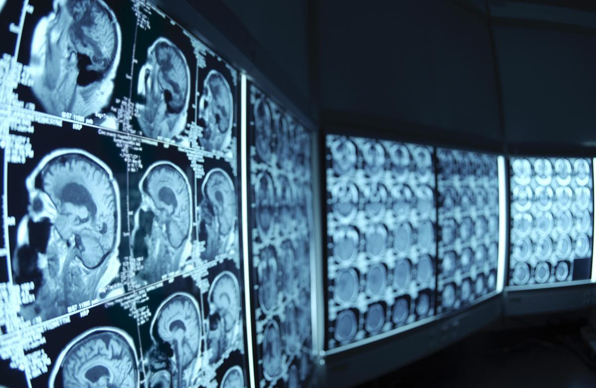 http://www.joeniekrofoundation.com/understanding/how-is-a-brain-aneursym-diagnosed/attachment/scans/