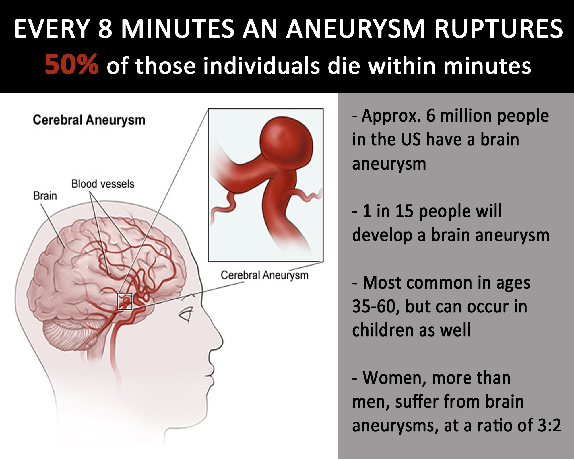 https://www.joeniekrofoundation.com/aneurysms/honoring-brain-aneurysm-awareness-week-march-12-18th/attachment/az-midday-chart-copy/